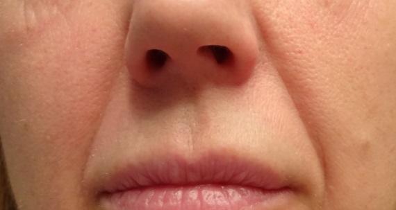 !QMS neus lippenplooi voor