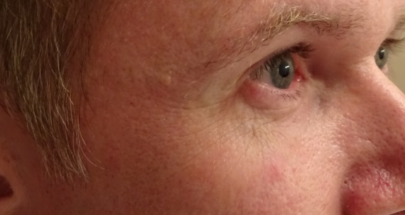 !QMS Medicosmetics Amersfoort resultaat zijkant ogen voor
