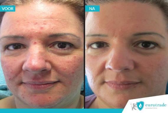 Resultaten !QMS Medicosmetics acne Intravital