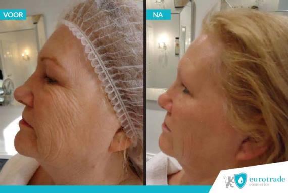 Resultaten !QMS Medicosmetics Ion Skin Equilizer