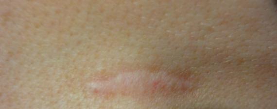 dermapen amersfoort litteken behandeling voor